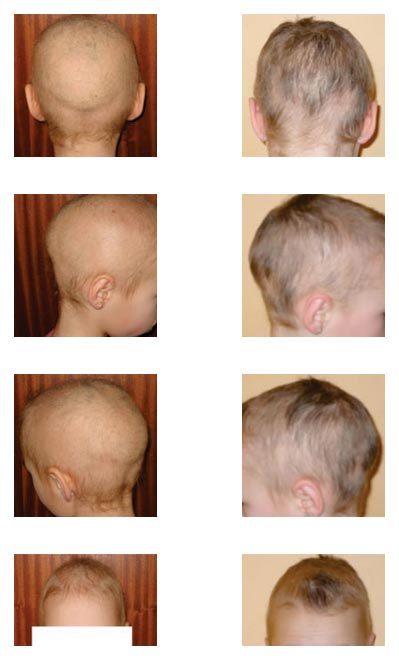 Child's Alopecia cured by DAILY USE of CALOSOL 4H SOLUTION