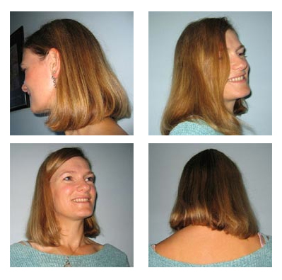 Hair regrowth is achieved using Calosol products