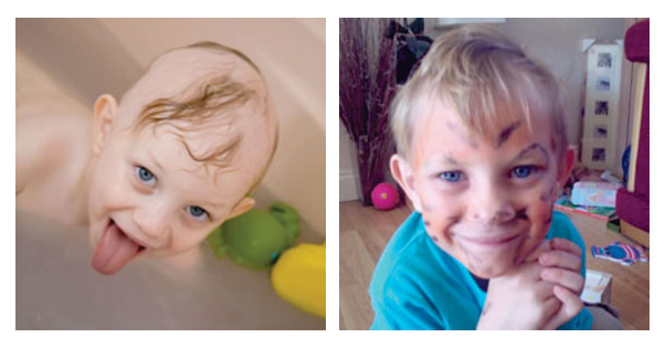 Little boy regrows hair after using Calosol products
