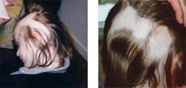 Child's hair before Calosol 4H treatment