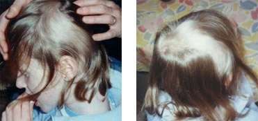 Child undergoing treatment for Alopecia