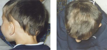 Child's hair regrowth after using Calosol products