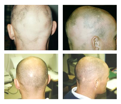 Adult male with alopecia shows regrowth after use of Calosol products