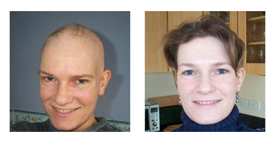 Young woman suffering from Alopecia