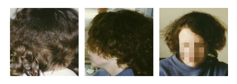 100% Hair regrowth after using Calosol